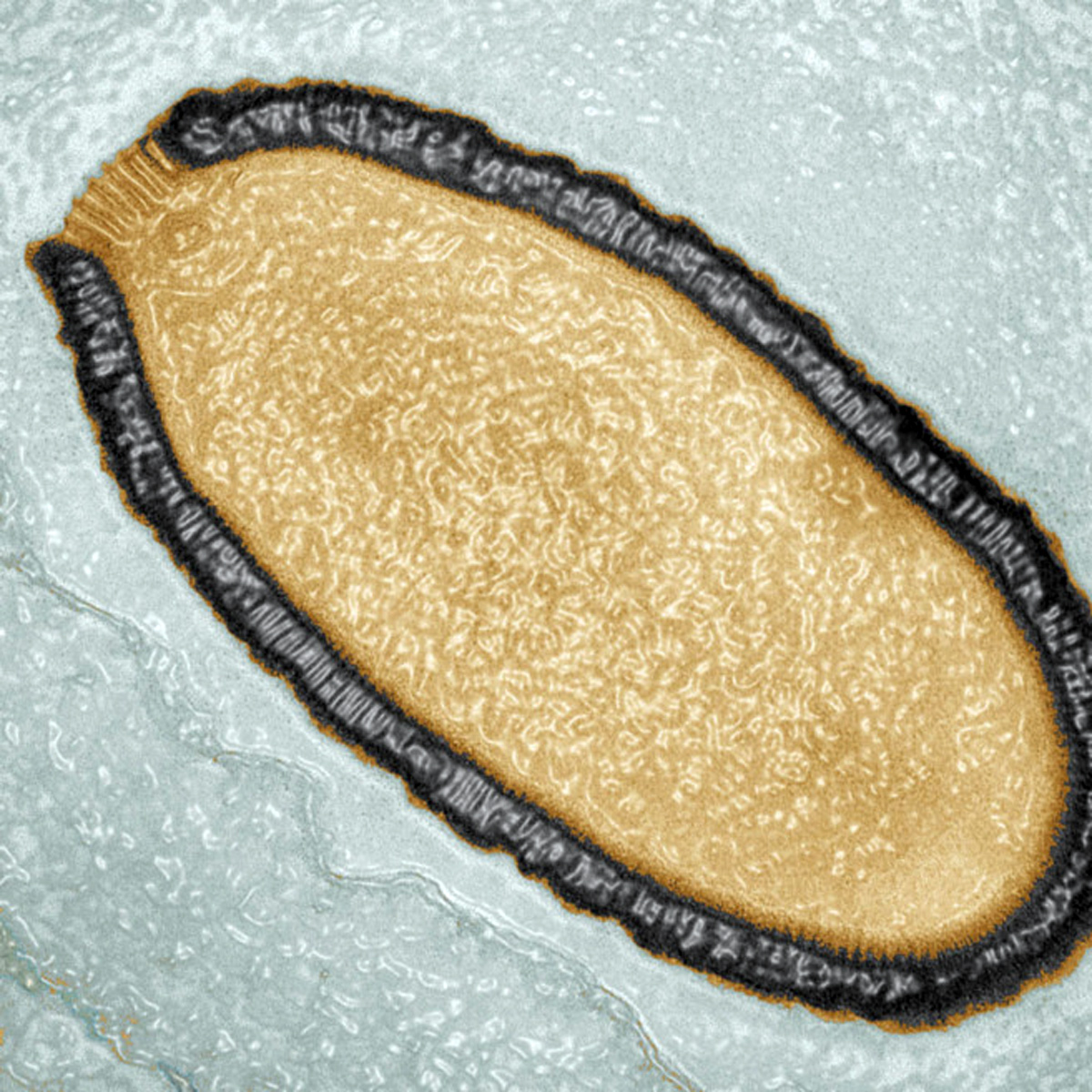 virus-de-30000-anos