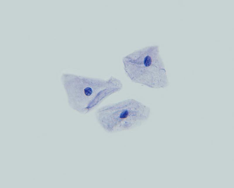 Muestra células de la mejilla. Tinción con azul de metileno, a 400x